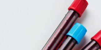 Δραματική έκκληση για αιμοδοσία - Οριακά η επάρκεια αίματος λόγω πανδημίας